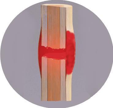 Heal Broken Bones Faster - Here's How